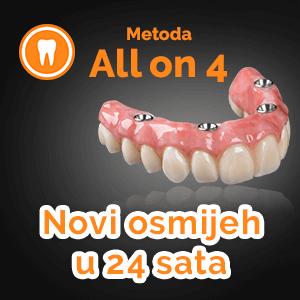 All-on-4 implantati za vraćanje osmjeha
