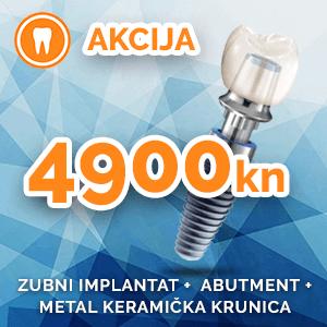 Najbolja cijena zubnih implantata u Hrvatskoj