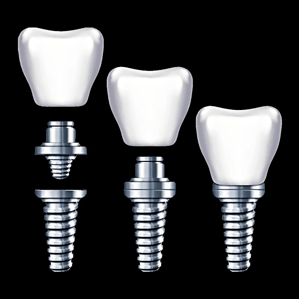 Kompletan zub na implantatu samo 204 kn mjesečno