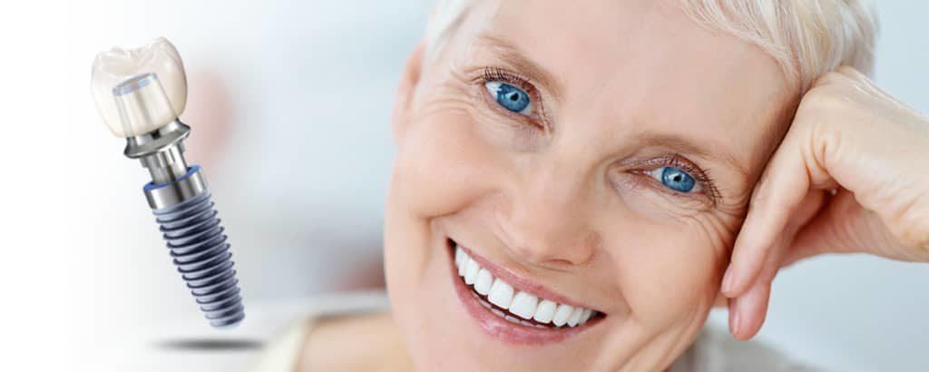 Zubni implantati Renata Ostojić