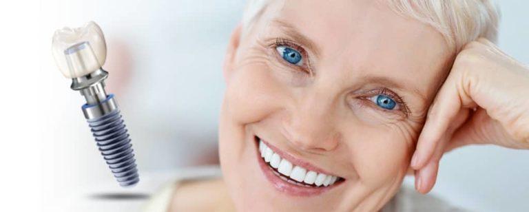O čemu ovisi cijena zubnih implantata?