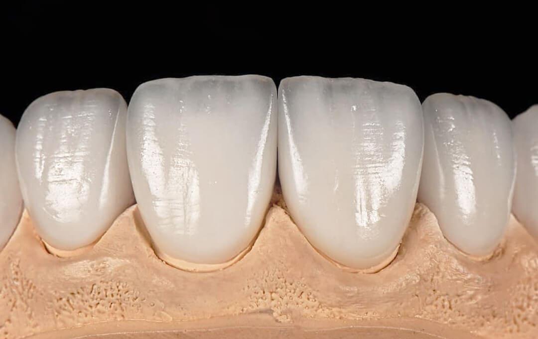 Primjeri stomatoloških radova