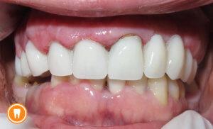 Lasersko produljenje kliničke krune zuba – Smile design