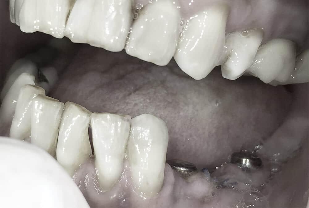 Imedijatno opterećenje na implantatima-2