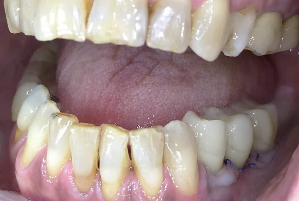 Imedijatno opterećenje na implantatima-3